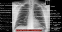 Radiologycourses