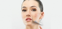 Doctors for pigmentation in Pune