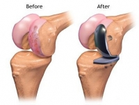 Joint Replacement Center