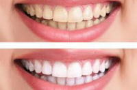 Best Teeth Whitening In Chennai