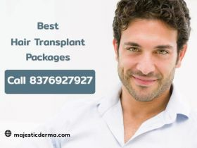 Hair Transplant Starting Rs.39,999