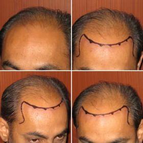 Dr Kalai,s Cosmetic Surgery clinic