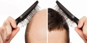 Athena Hair Now - Hair Transplant in Chanidgarh, India
