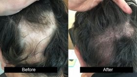 AG Clinics - Hair Transplant in Jalandhar