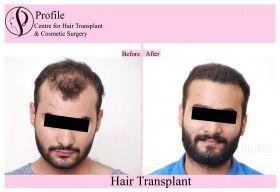 Profile Cosmetic Surgery Centre