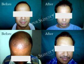 Jaipur Skin City - Hair Transplant