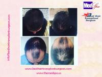 Best Hair Transplant INDIA