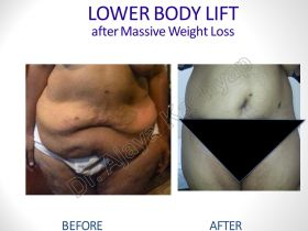 Best Body Lift Surgery India