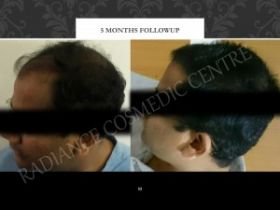 Radiance Cosmedic Centre | Cost of hair transplant in Delhi