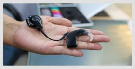 Cochlear Implant System