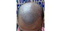Head hair transplant in India
