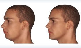 Jaw Deformity Treatment in Dubai