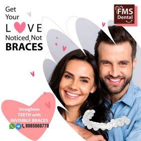 Invisible Braces Treatment