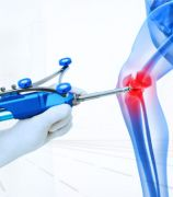 TOTAL KNEE REPLACEMENT CENTER IN AHMEDABAD