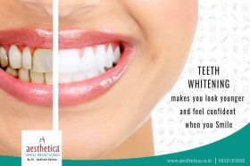 Teeth whitening in kolkata