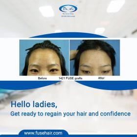 Best Hair Transplant In Delhi