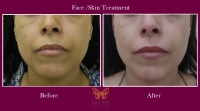 Skin Treatments in Pune