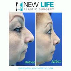 Enhance Your Looks via Cosmetic Surgery