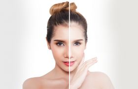 Skin Whitening in Hyderabad Cosmetic 360