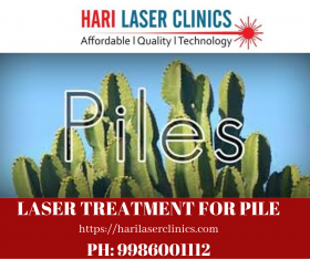 Laser Treatment for Piles