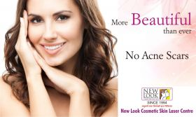 75% off Black Spots, Mole and Skin Scar Removal
