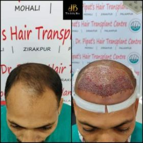 Hair Transplant Clinic in Chandigarh