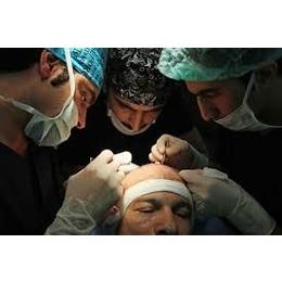 Hair Transplant in Trivandrum