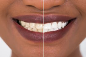 Teeth Whitening in Norwich