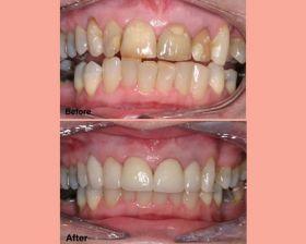 Restorations (Tooth Filling)