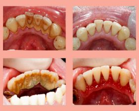 Scaling and Root Planning (Teeth Cleaning)