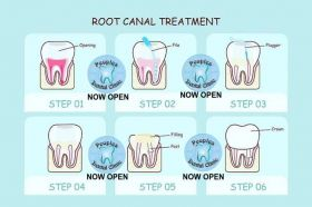 Root Canal Treatment ( RCT )