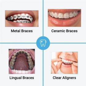Braces treatment for perfect straight teeth