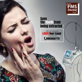 Best Laser Root Canal Treatment  In India