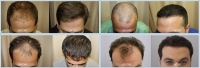 FUE Hair Transplant Specialists