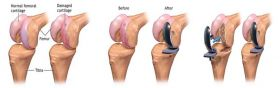 Painless & Minimal-Stitch Knee Replacement