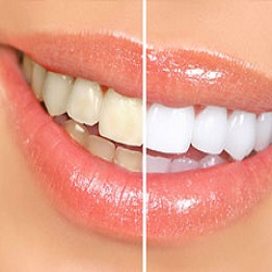 Cosmetic Tooth Fillings