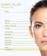 Filler Treatment
