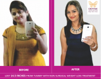 Weight Loss Treatment