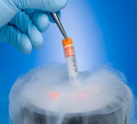 Sperm Freezing