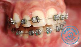 Metal Braces for teeth