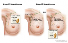 Breast cancer surgery in Ahmedabad